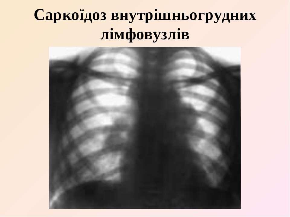 Саркоїдоз внутрішньогрудних лімфовузлів