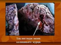 Так виглядає мозок колишнього курця.