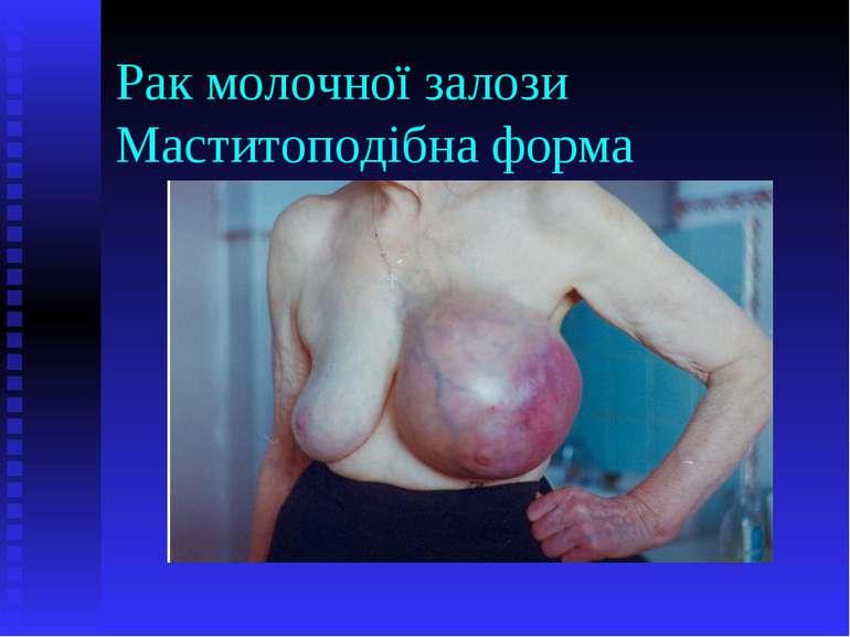 Рак молочної залози Маститоподібна форма