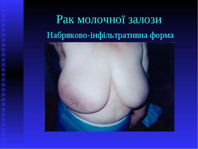 Рак молочної залози Набряково-інфільтративна форма