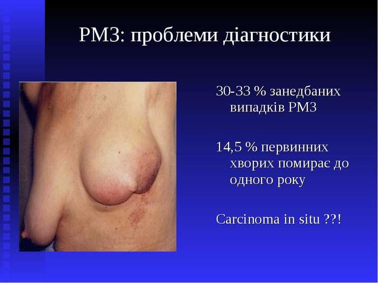 РМЗ: проблеми діагностики 30-33 % занедбаних випадків РМЗ 14,5 % первинних хв...