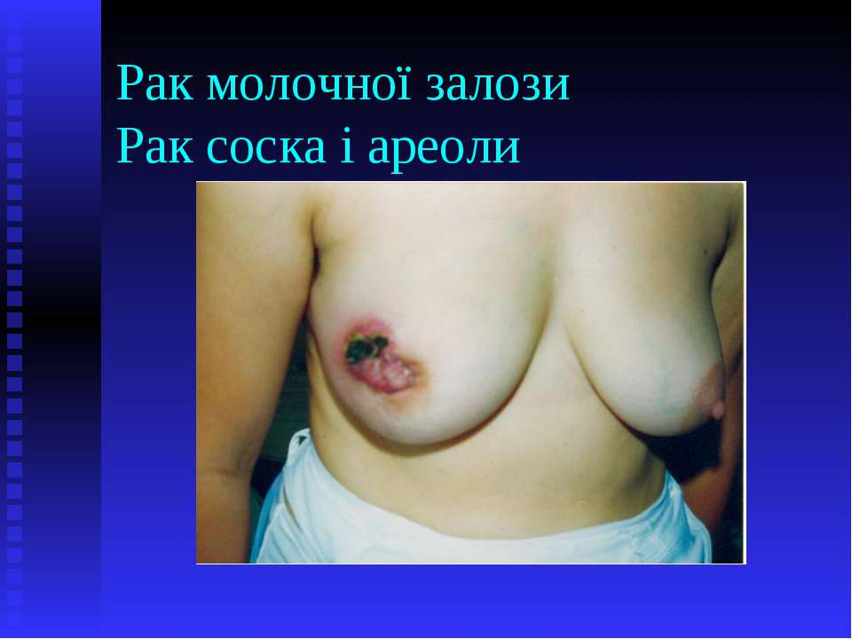 Рак молочної залози Рак соска і ареоли