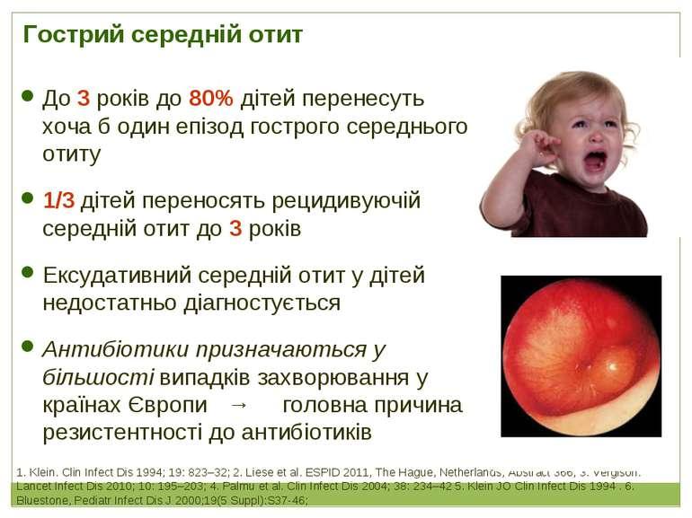 Гострий середній отит 1. Klein. Clin Infect Dis 1994; 19: 823–32; 2. Liese et...