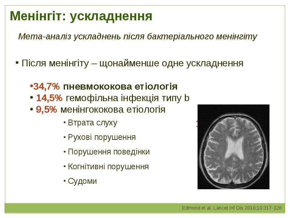 Менінгіт: ускладнення Після менінгіту – щонайменше одне ускладнення 34,7% пне...