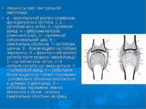 Зміни в суглобі при тривалій імобілізації а – фронтальний розпил нормально фу...