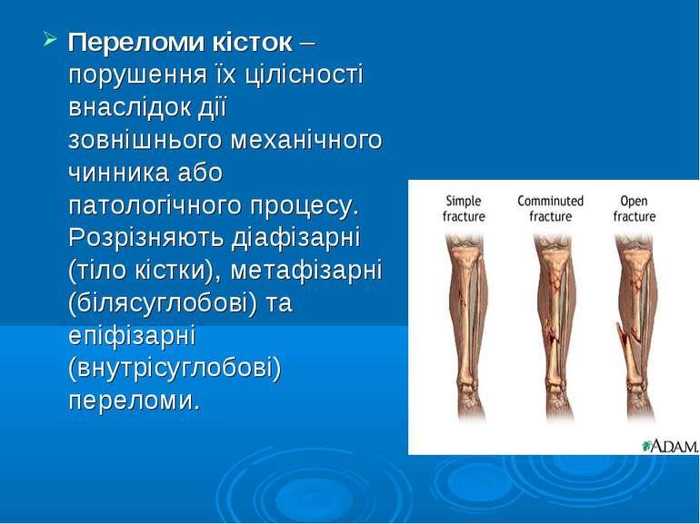 Переломи кісток – порушення їх цілісності внаслідок дії зовнішнього механічно...