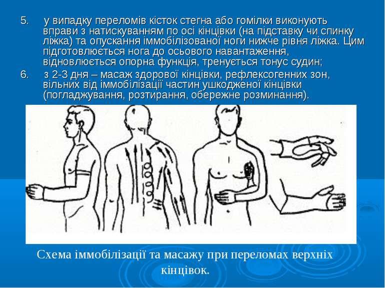 5. у випадку переломів кісток стегна або гомілки виконують вправи з натискува...