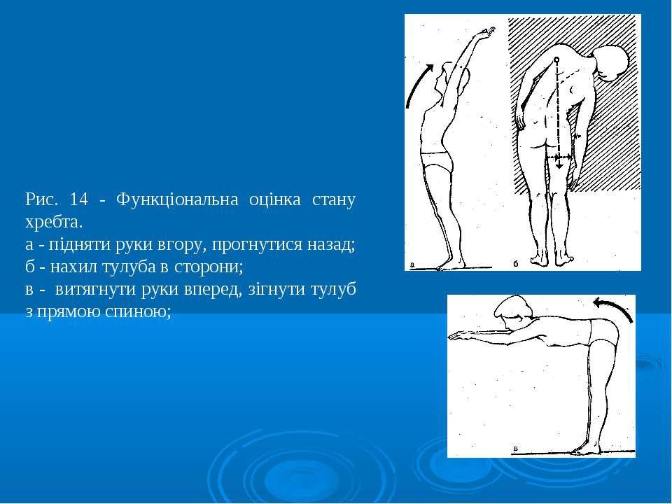 Рис. 14 - Функціональна оцінка стану хребта. а - підняти руки вгору, прогнути...