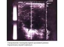 Ультразвукова сканограма правої здухвинної ділянки. Параапендикулярний інфіль...
