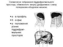 Схематичне зображння піддіафрагмального простору, обмеженого зверху діафрагмо...