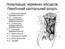 Локалізація черевних абсцесів. Лівобічний сагітальний розріз. 1 -лівобічний в...