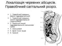 Локалізація черевних абсцесів. Правобічний сагітальний розріз. . 1 - Правобіч...