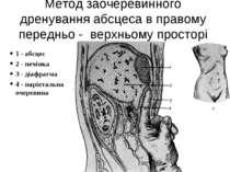 Метод заочеревинного дренування абсцеса в правому передньо - верхньому просто...