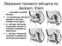 Лікування тазового абсцеса по Jackson, Elem а – типовий тазовий абсцес - в по...