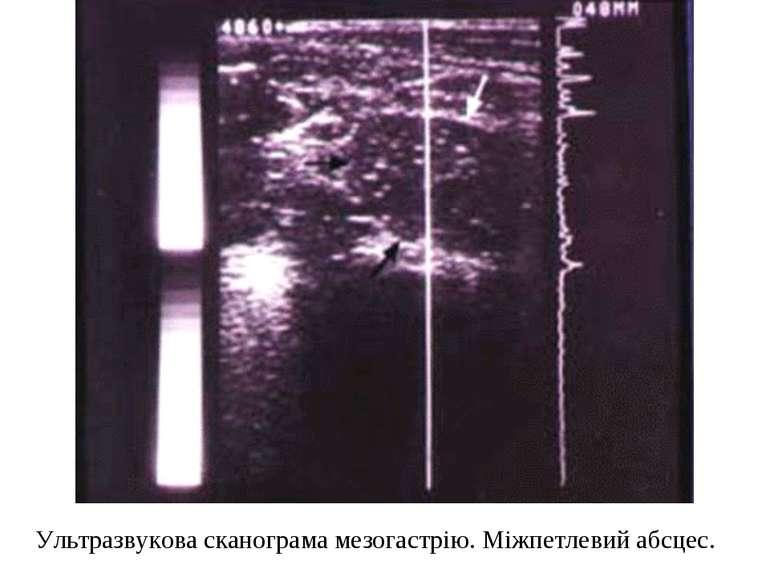Ультразвукова сканограма мезогастрію. Міжпетлевий абсцес.
