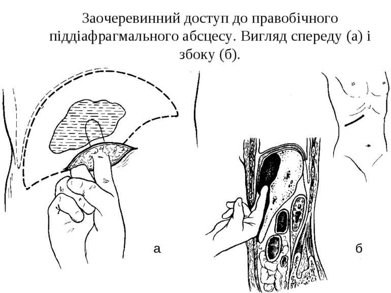 Заочеревинний доступ до правобічного піддіафрагмального абсцесу. Вигляд спере...