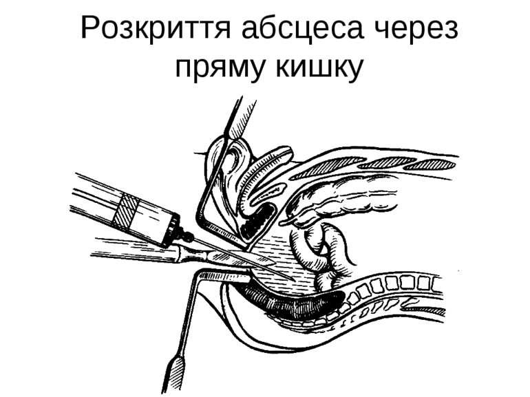 Розкриття абсцеса через пряму кишку