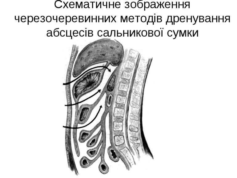 Схематичне зображення черезочеревинних методів дренування абсцесів сальниково...