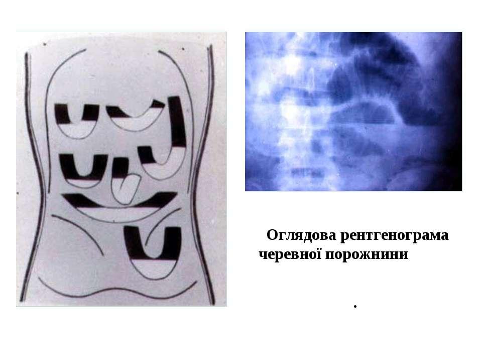 Схема образования чаш Клойбера. Оглядова рентгенограма черевної порожнини, ча...