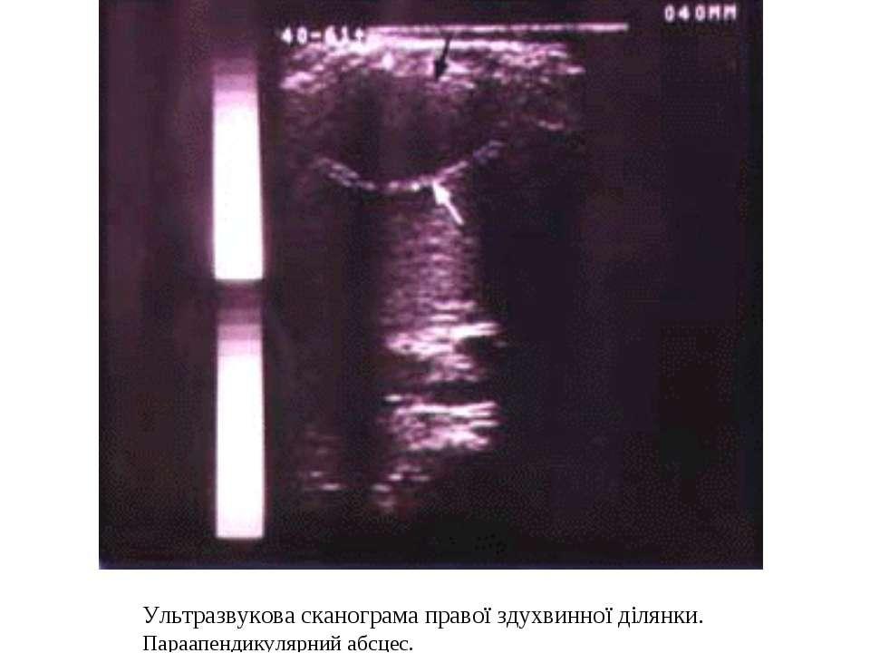 Ультразвукова сканограма правої здухвинної ділянки. Параапендикулярний абсцес.