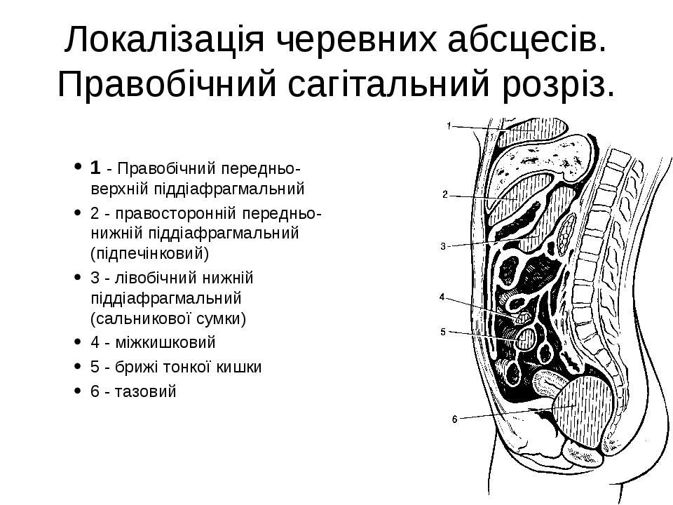 Локалізація черевних абсцесів. Правобічний сагітальний розріз. 1 - Правобічни...