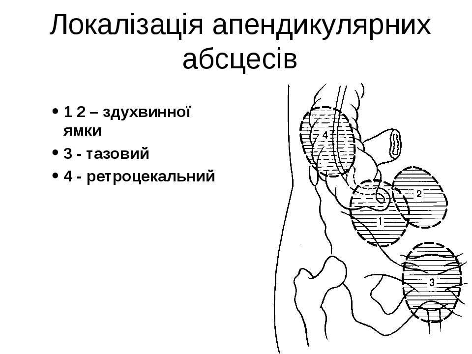 Локалізація апендикулярних абсцесів 1 2 – здухвинної ямки 3 - тазовий 4 - рет...