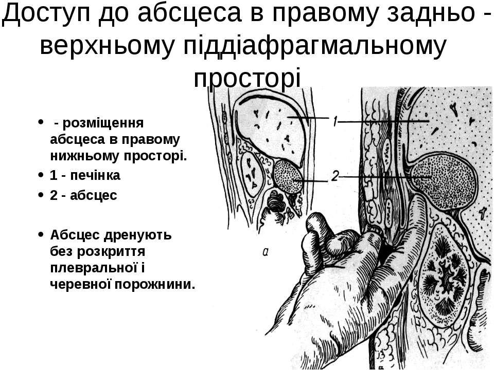 Доступ до абсцеса в правому задньо - верхньому піддіафрагмальному просторі - ...