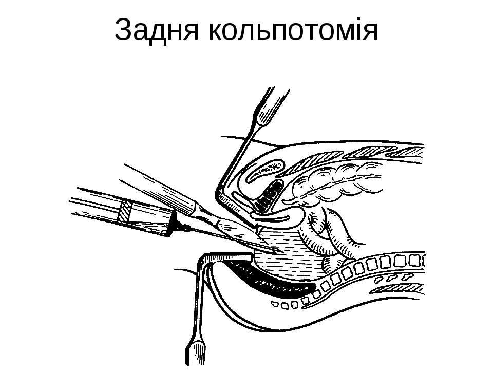 Задня кольпотомія