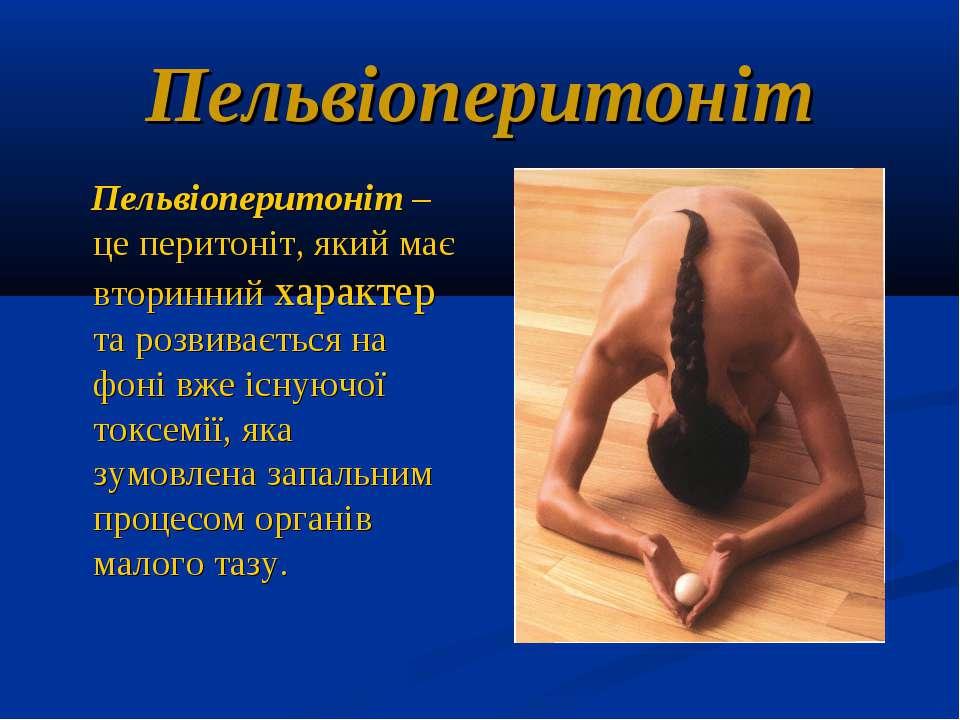 Пельвіоперитоніт Пельвіоперитоніт – це перитоніт, який має вторинний характер...